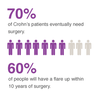 crohns disease surgery