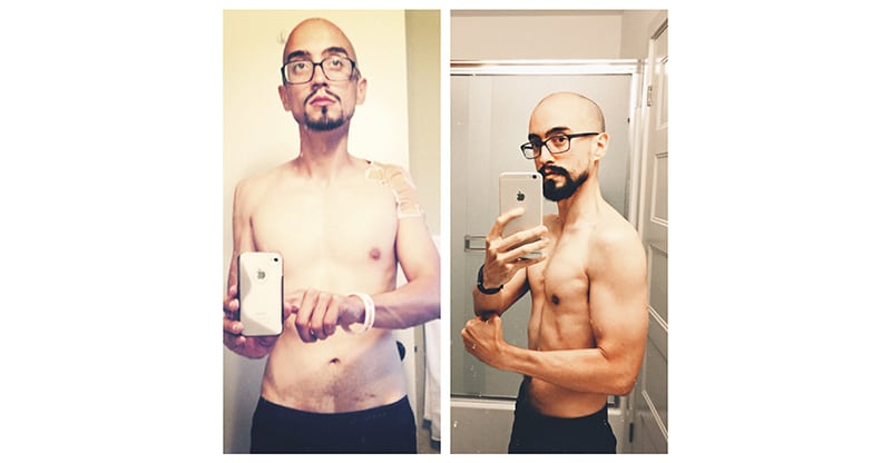 before and after celiac disease