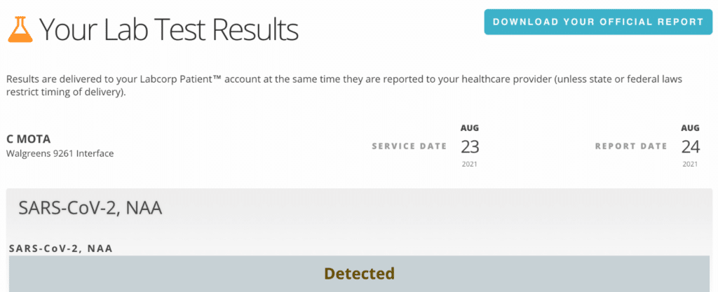 COVID-19 Labcorp test results